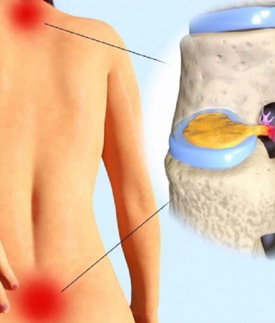 Despre elongaţii sau tratamentul de bază în hernia de disc